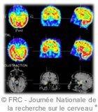 epilepsie imagerie