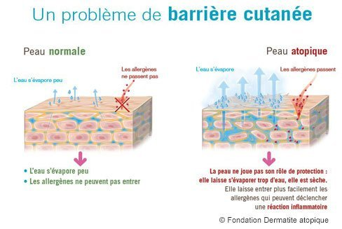 probleme barriere cutainee