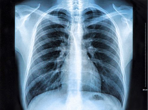 resultats radiographie